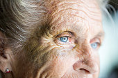 Abused caucasian senior woman with black eye