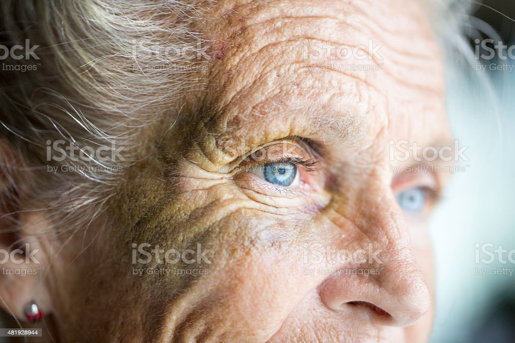 Abused caucasian senior woman with black eye stock photo