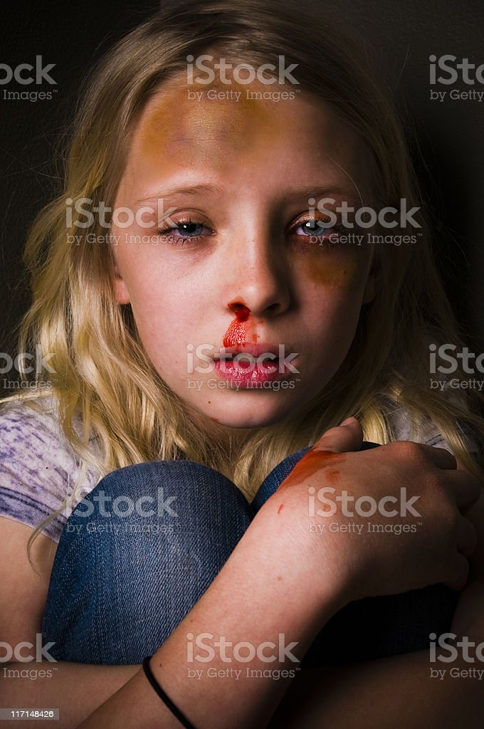 abused little girl royalty-free stock photo