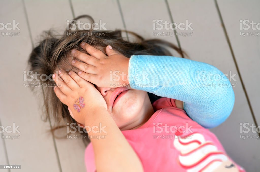 Abused little girl with a broken arm stock photo