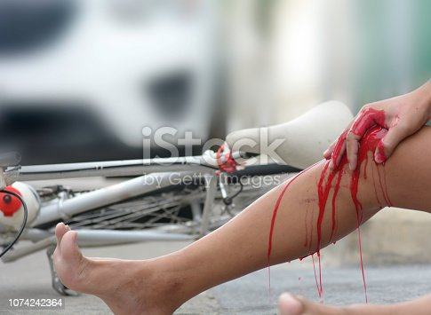 istock Accident from a bicycle collided with a car 1074242364