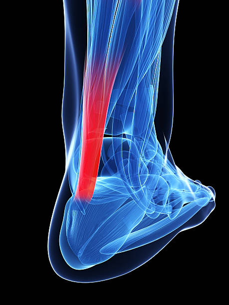 achilles tendon stock photo
