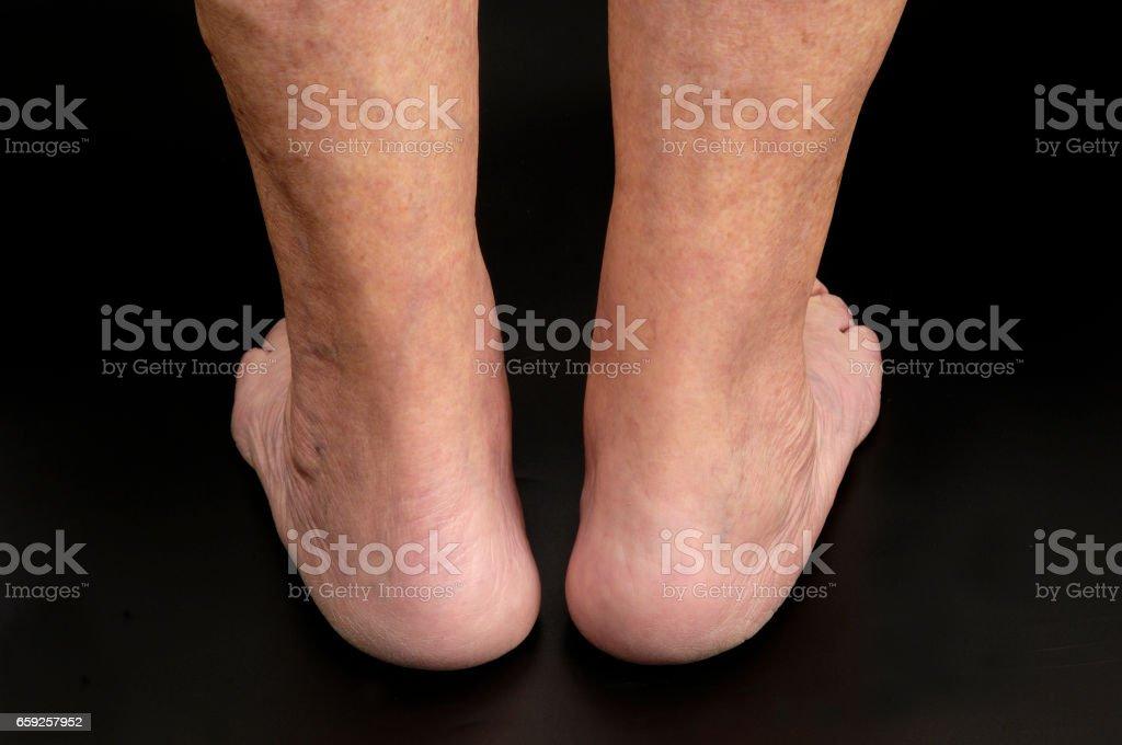 Achilles tendon – Foto