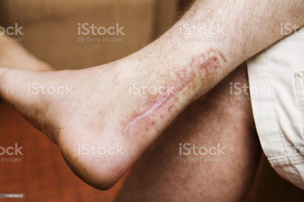Achilles tendon scar stock photo
