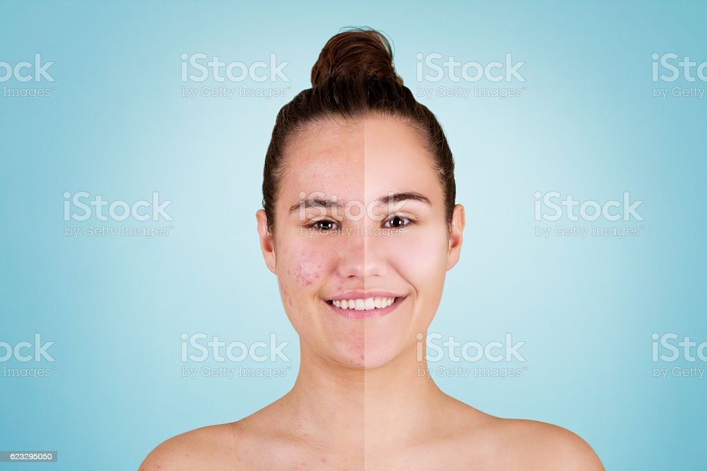 Acne before and after stock photo