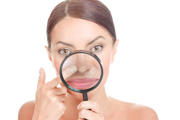 Acne blackheads on woman's nose showed in a magnifying glass stock photo