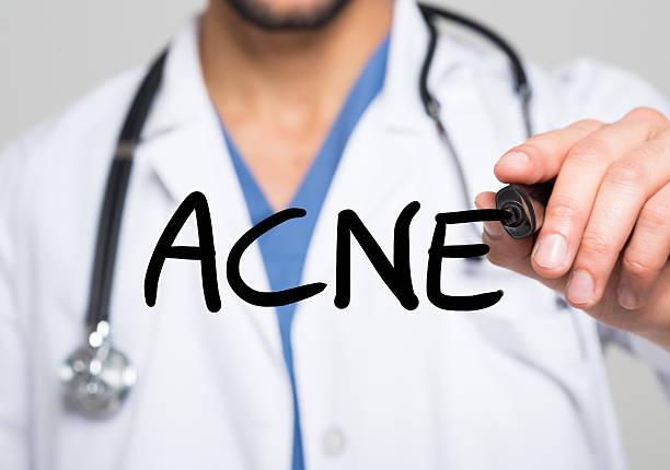 Acne medical concept stock photo
