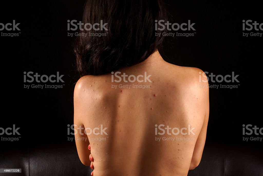 acne on a females back​​​ foto