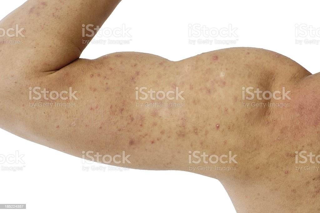 acne on a male's arm and shoulder royalty-free stock photo