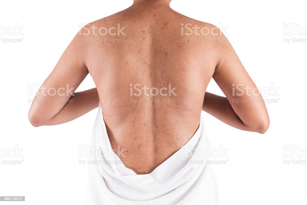 acne on body skin foto de stock royalty-free