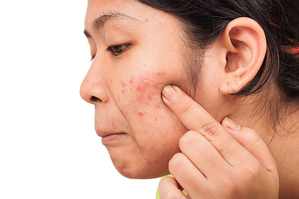 acne on skin face women stock photo