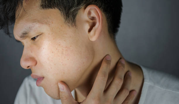 Acne or pimple on looking worried man stock photo