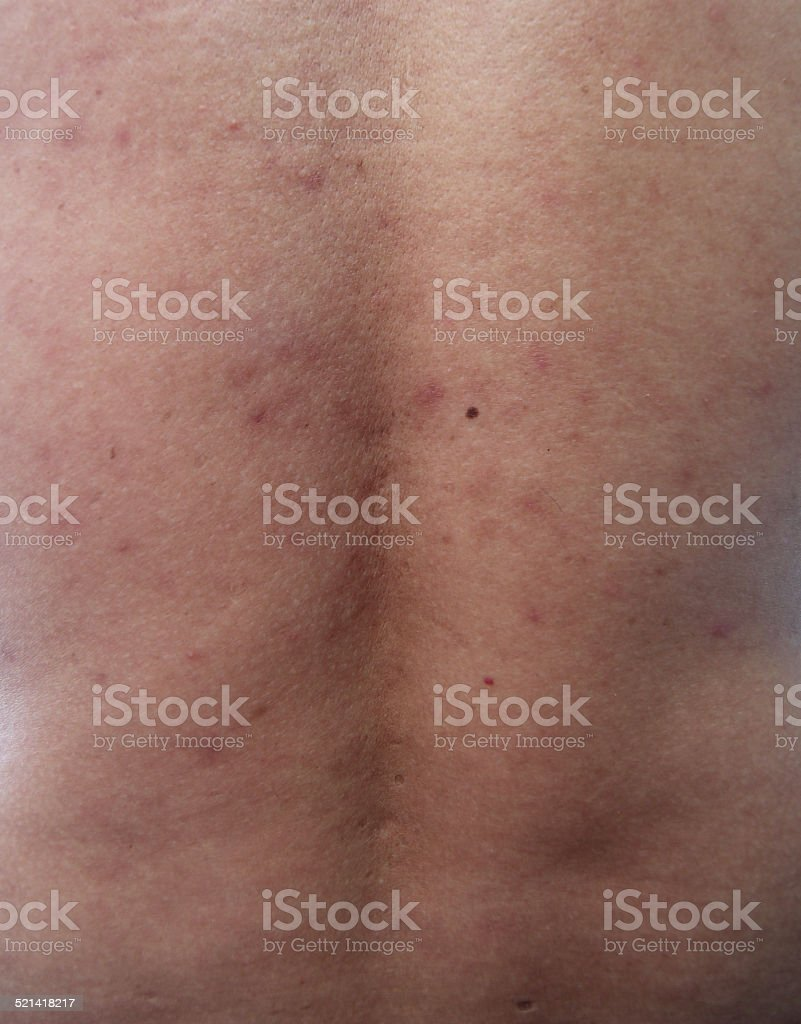 Acne or scars and keloids in the back stock photo