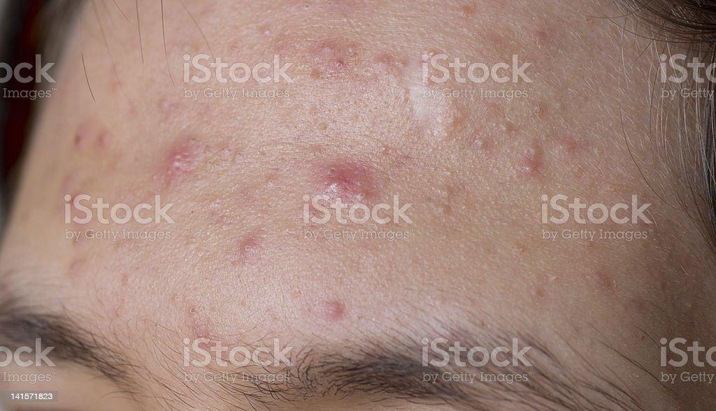 Peau acnéique - Photo