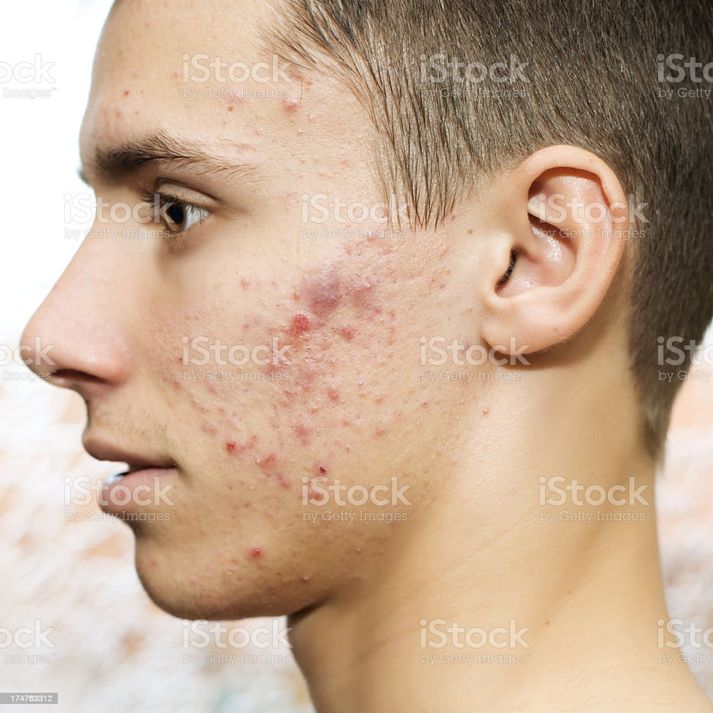Acne stock photo