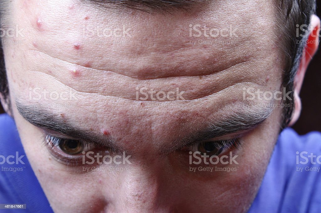 Acne pimples on the face stock photo