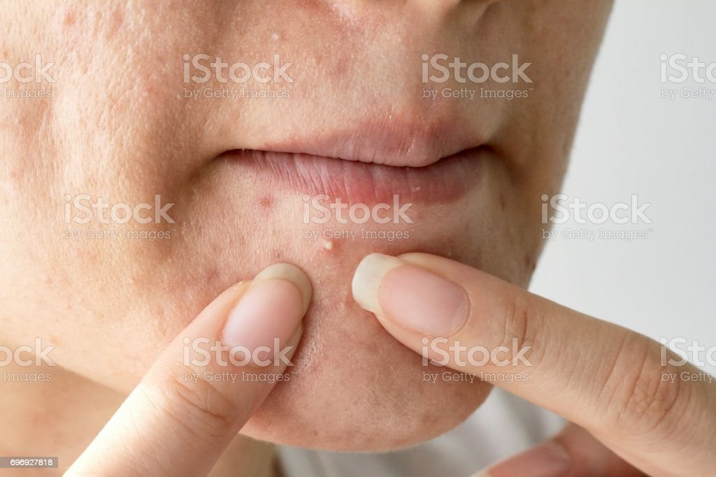 Acne pus, Close up photo of acne prone skin, Woman squeezing her pimple, Removing pimple from her face. - foto stock