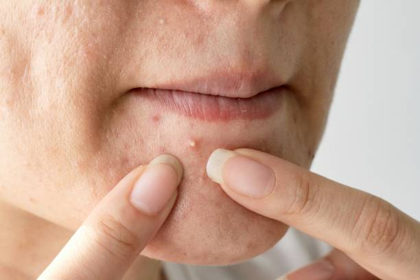 Acne pus, Close up photo of acne prone skin, Woman squeezing her pimple, Removing pimple from her face. stock photo