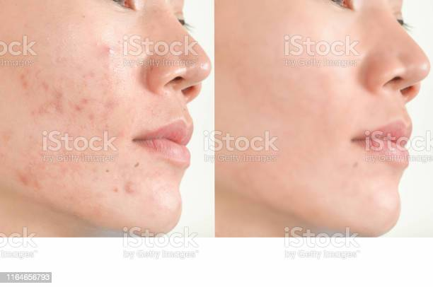 Acne scars and pores black spots wrinkles and skin problems picture id1164656793?b=1&k=6&m=1164656793&s=612x612&h=n3bcqh8j34e4aauzgnlfnknvawmhlssm rpcezkuu7c=
