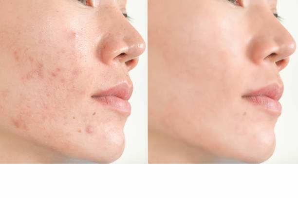 Acne scars and pores. Black spots, wrinkles and skin problems stock photo