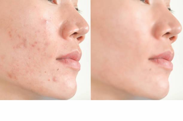 cicatrizes de acne e poros. manchas pretas, rugas e problemas de pele - antecipação - fotografias e filmes do acervo