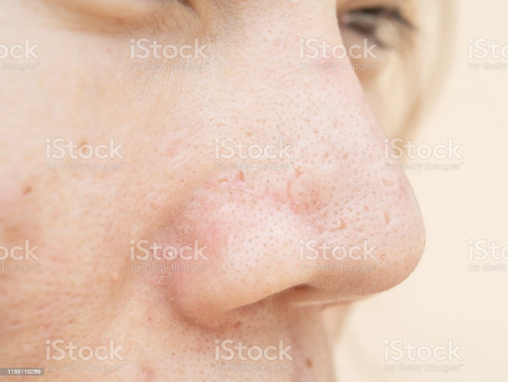 Acne Scars And Pores In The Nose Black Spots Stock Photo Download Image Now Istock