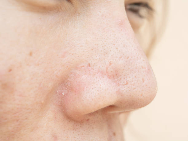 Acne scars and pores. In the nose Black spots, stock photo