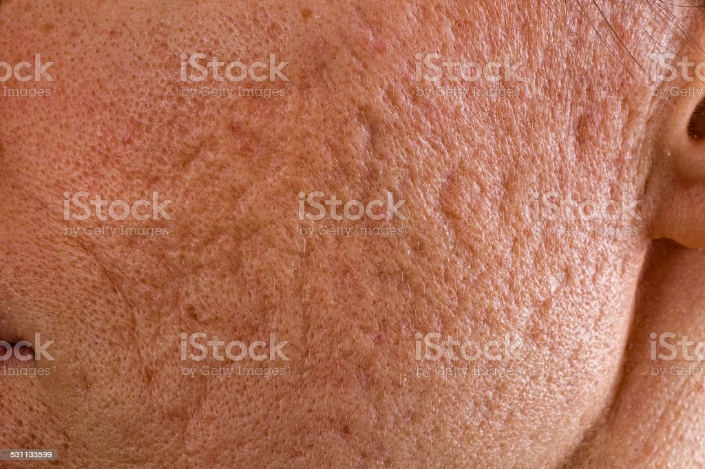 Acne scars on cheek stock photo