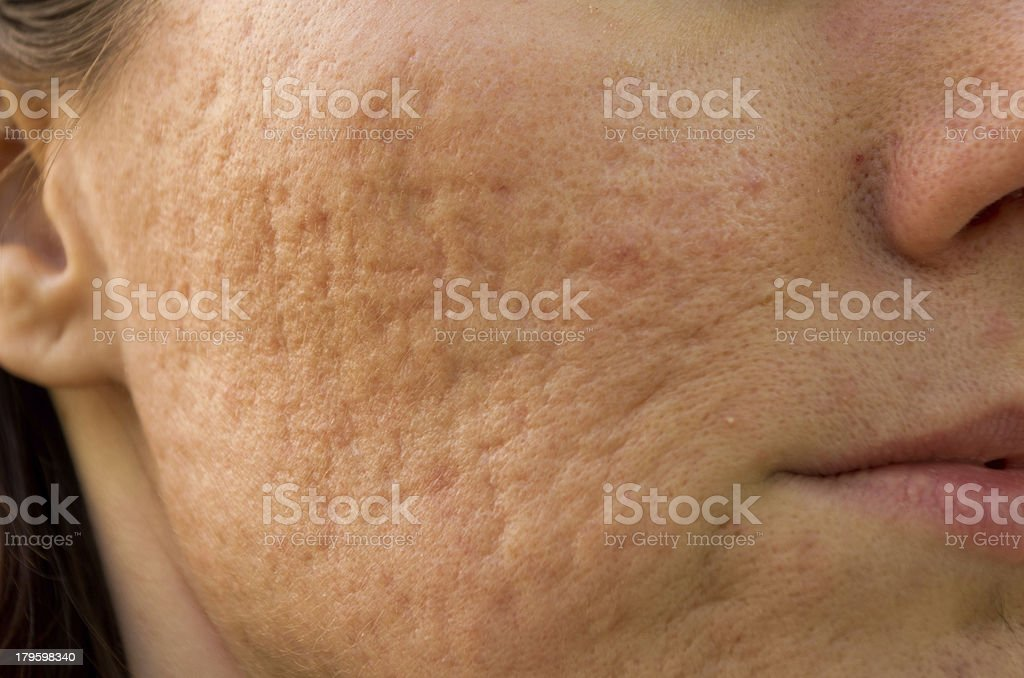 Acne scars stock photo