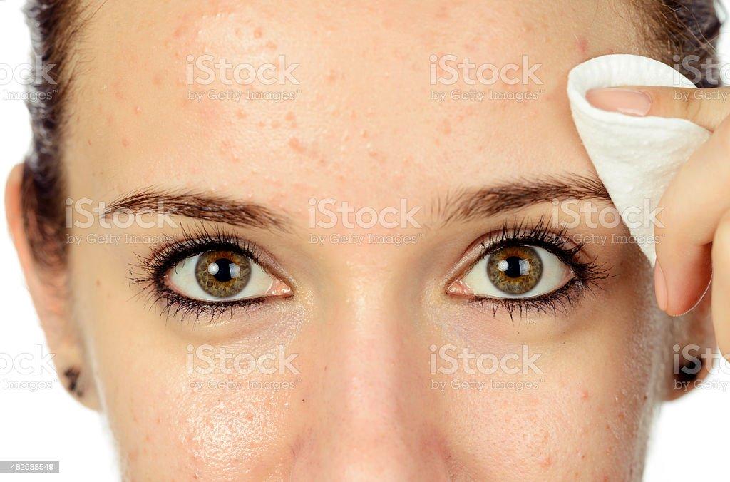 acne skin stock photo