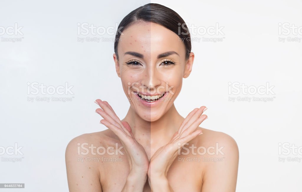 Acne. Skin problems. Two different halves of the face. stock photo