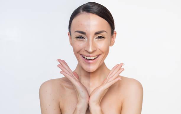にきび。皮膚の問題。顔の 2 つの異なる部分。 ストックフォト
