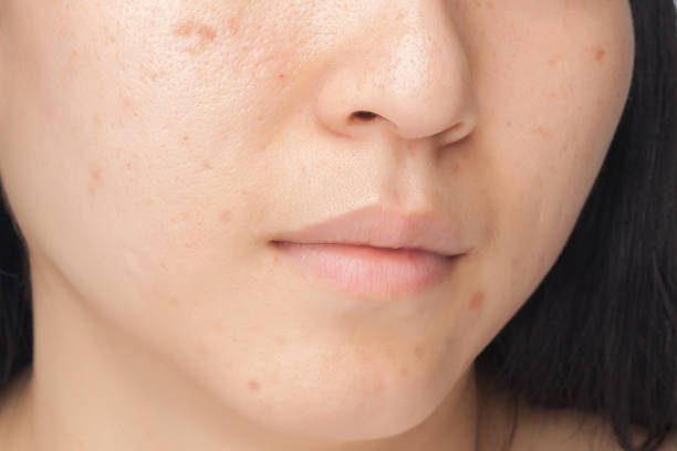 Acne spots stock photo