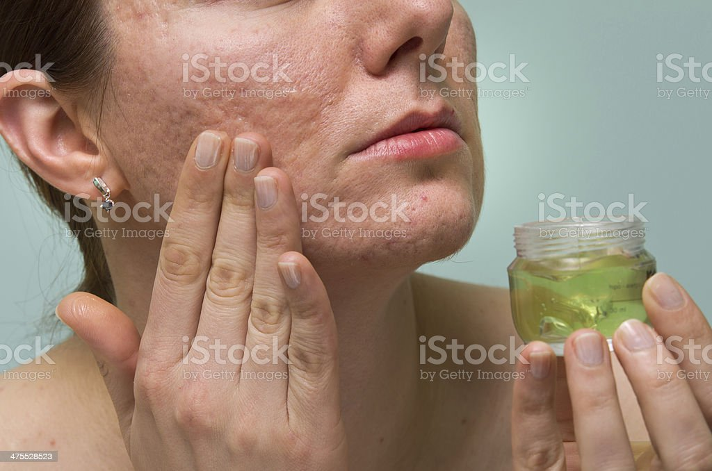 Acne therapy stock photo