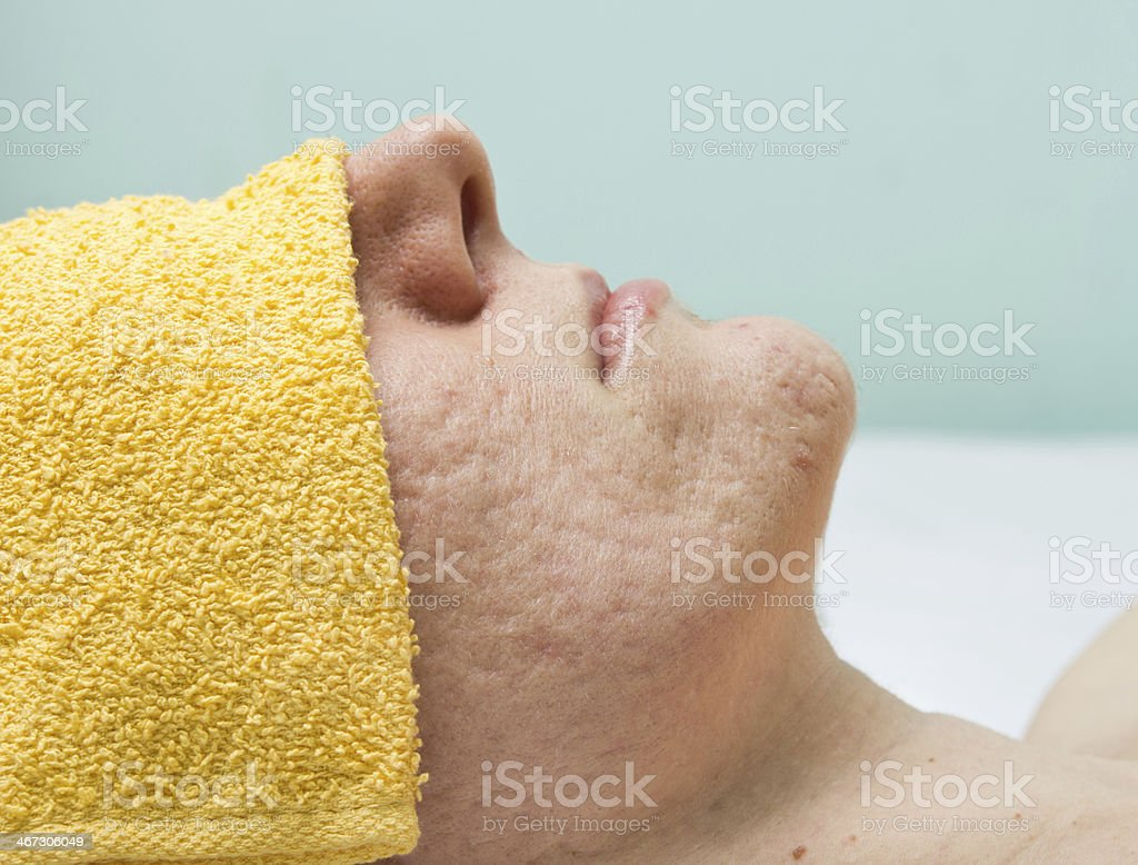 Acne treatment stock photo