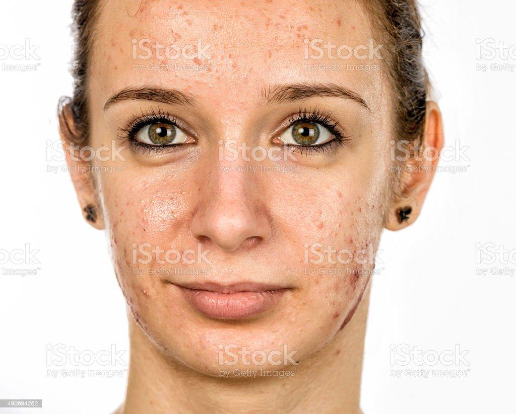 acneic woman portrait stock photo
