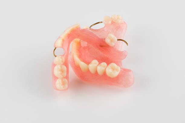 acrylic dental prosthesis – zdjęcie