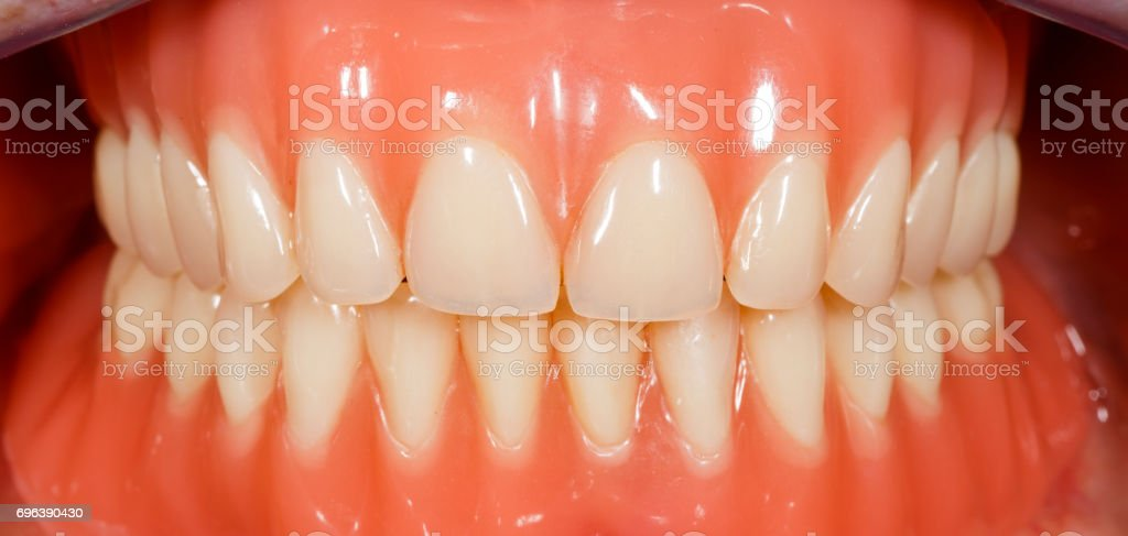 Acrylic removable dentures stock photo