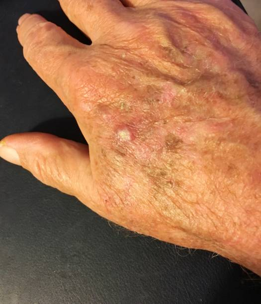 Actinic keratosis - precursor to squamous cell skin cancer Actinic keratosis - a precursor to squamous cell carcinoma or skin cancer on a man's hand carcinoma stock pictures, royalty-free photos & images