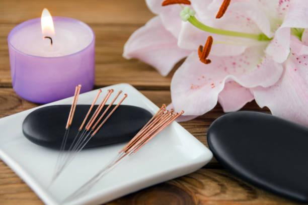 acupuncture et massage de pierre chaude - acupuncture photos et images de collection