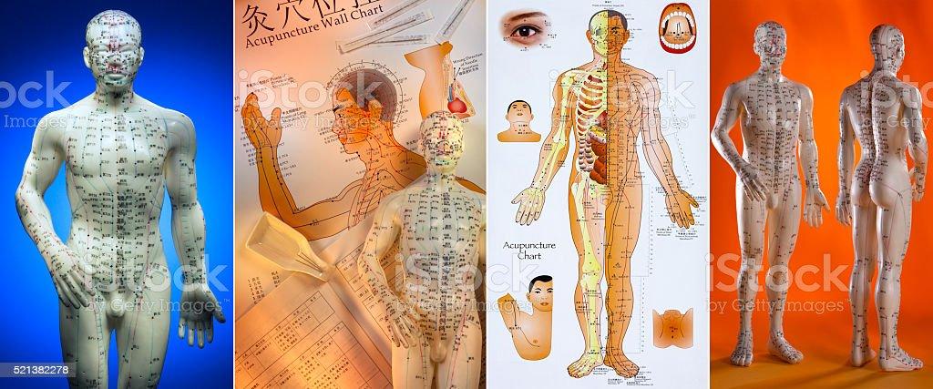 Acupunctura-Chinês medicamento - fotografia de stock