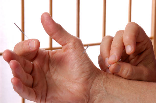 Acupuncture Hand and Fingers – Foto