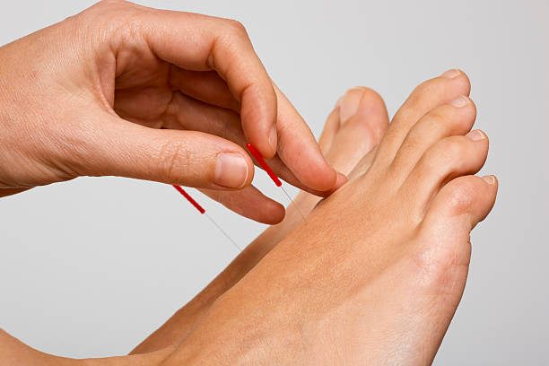 Acupuncture needle applied to foot stock photo