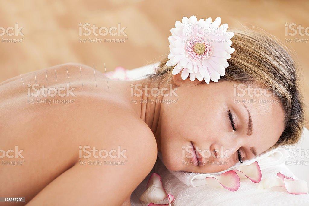 Acupuncture needle inserted stock photo