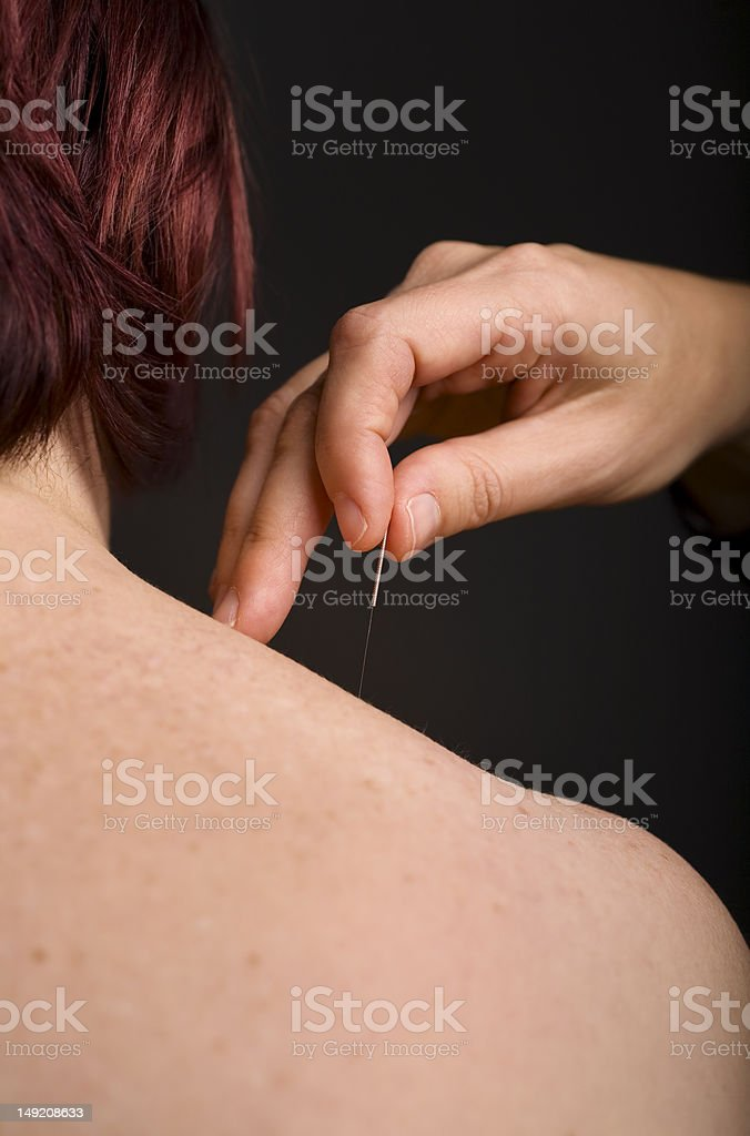 Acupuncture needle on shoulder stock photo