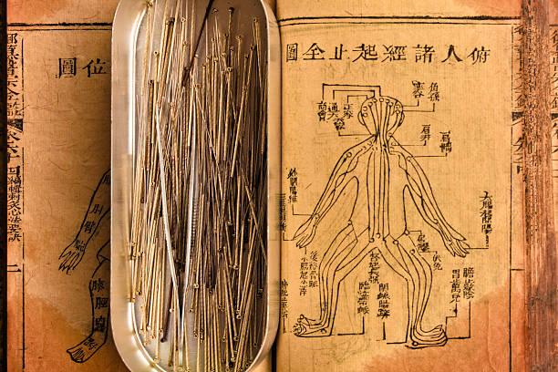 akupunkturnadel - chinesische zeichen tattoos stock-fotos und bilder
