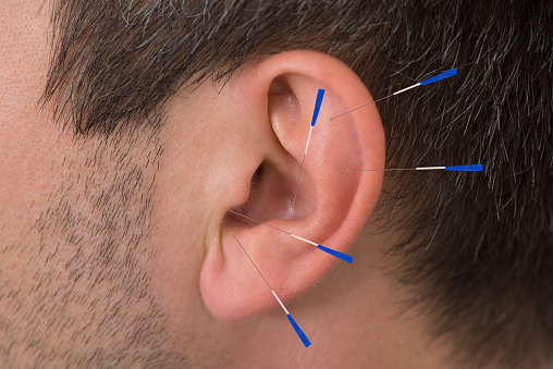 Acupuncture Needles On Ear Stock Photo - Download Image Now