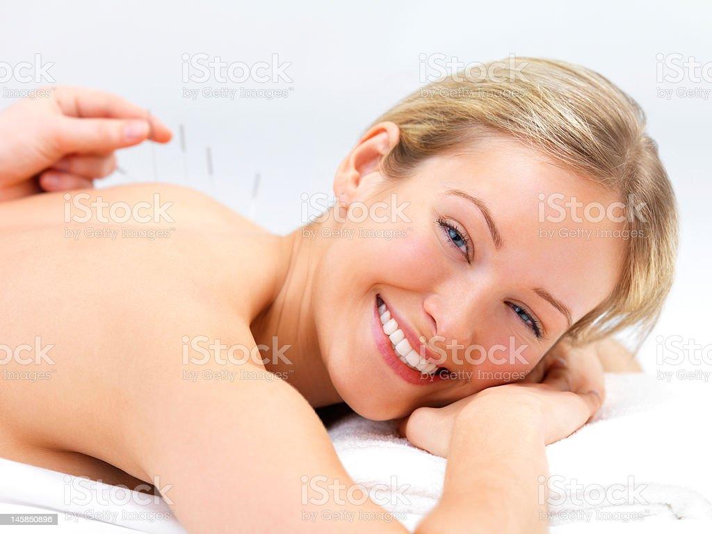 Akupunktur Nadeln auf der Rückseite eine schöne junge Frau – Foto