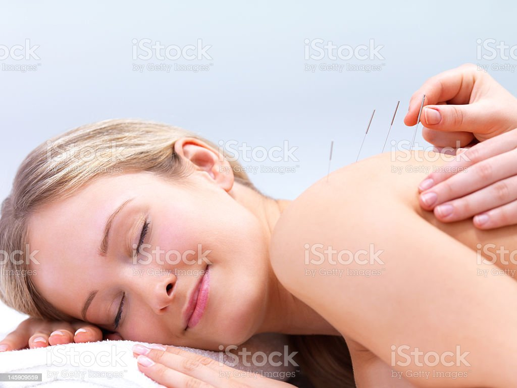 Acupuncture needles on the back of a beautiful young woman