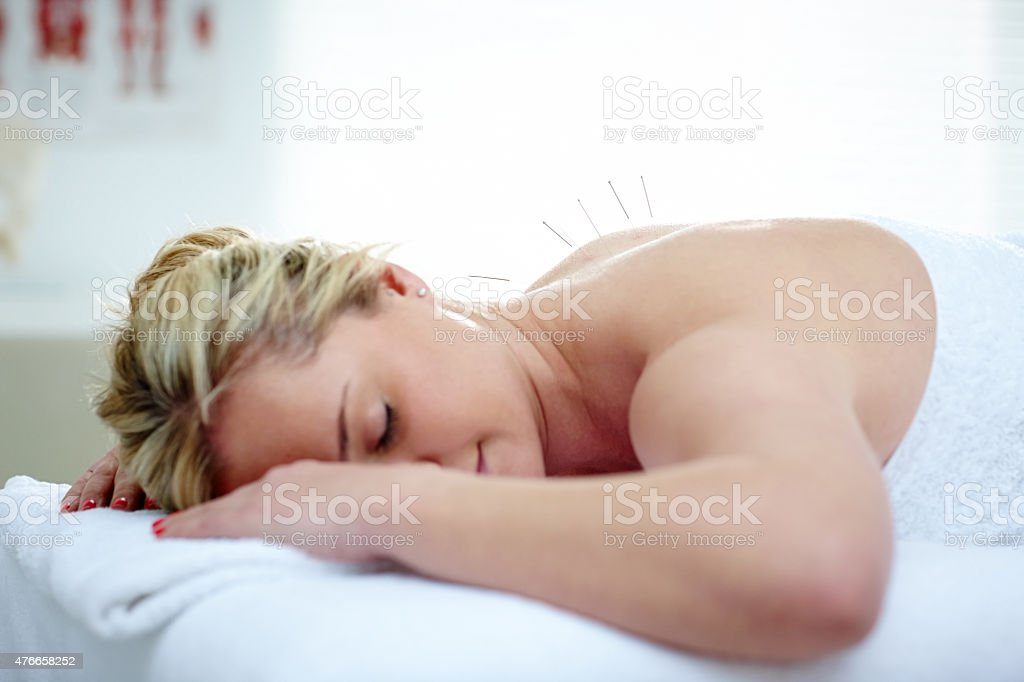 Acupuncture needles on the back of a young woman stock photo